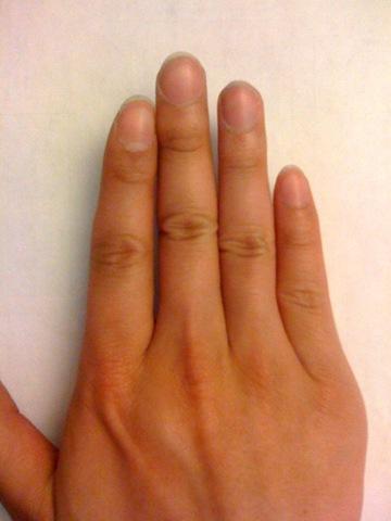 Krummer Finger